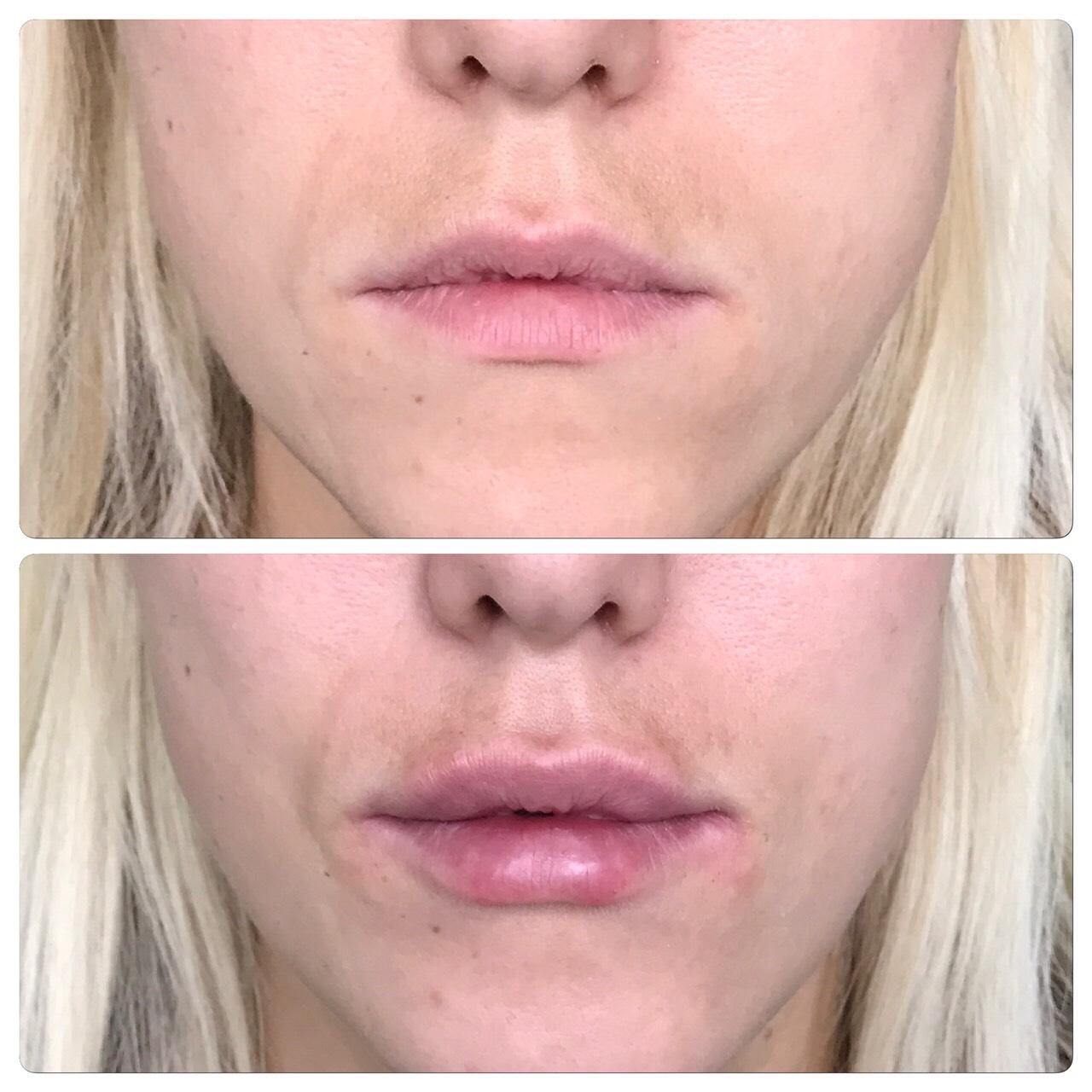 Филлинг губ. Увеличение губ при помощи филлера