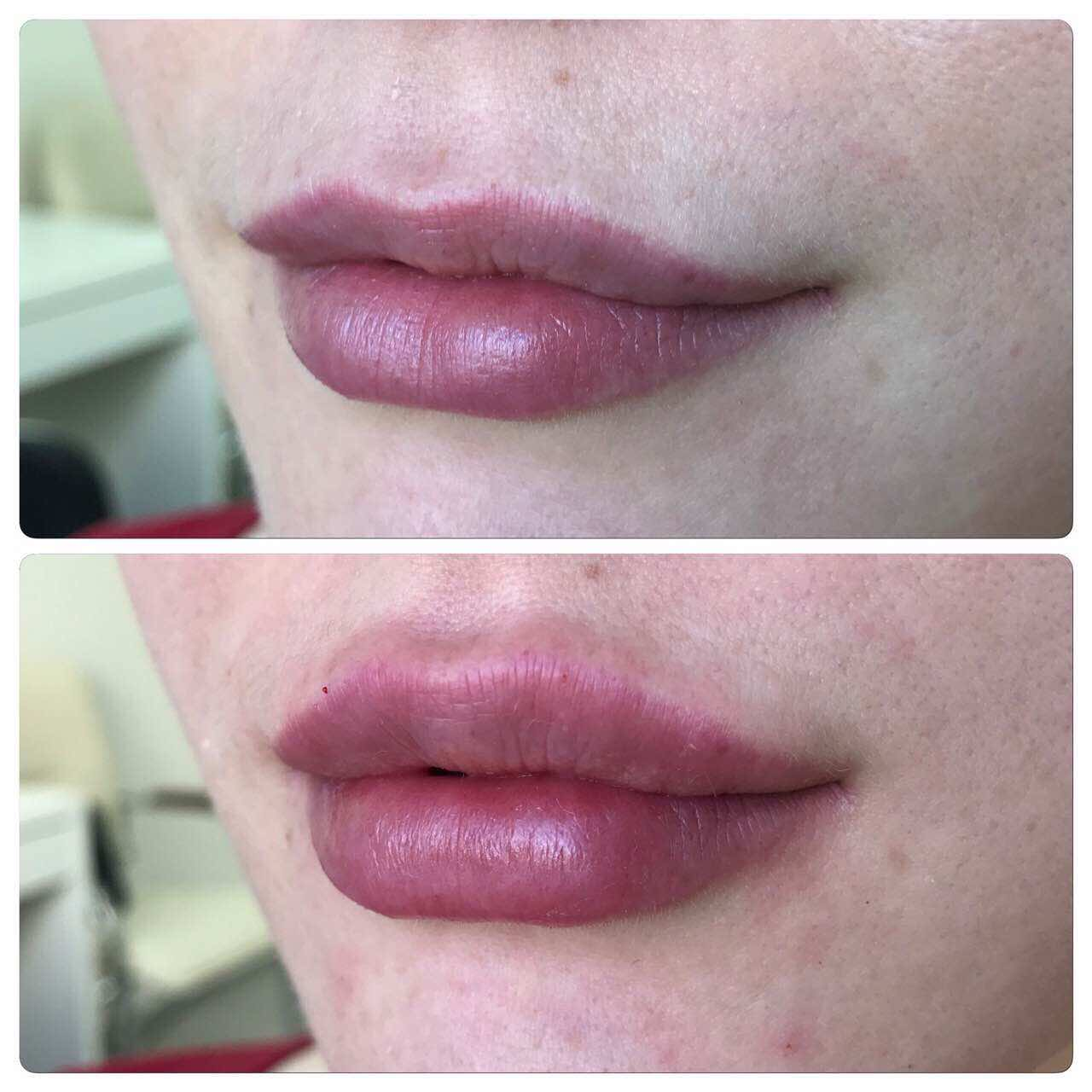 Филлеры для коррекции губ